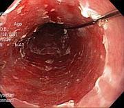Barrett's Oesophagus on endoscopy