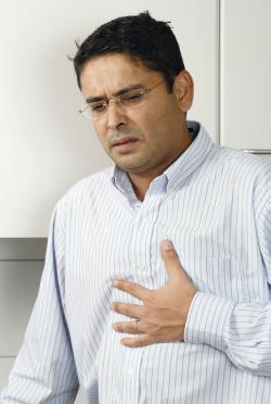 Heartburn after sleeve gastrectomy