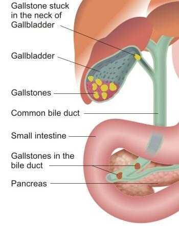 gallstones in the bile ducts