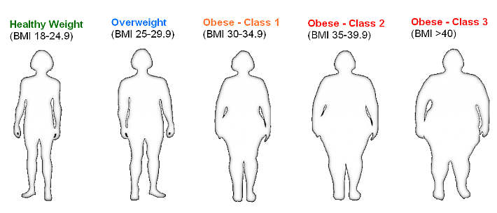 obesity according to bmi